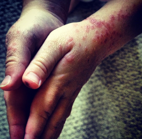 Complications of the Hand, Foot, and Mouth Disease