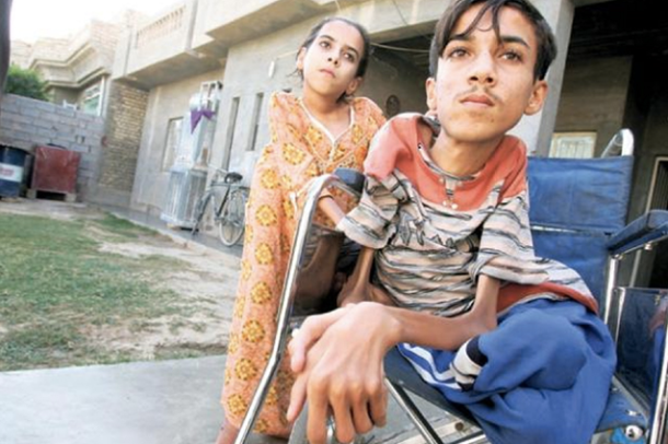 Fallujah children who both suffer from birth defects